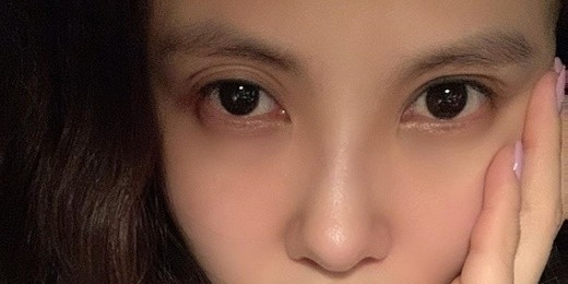 手術 芸能人 眼瞼下垂